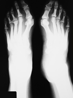 Podiatry New Windsor